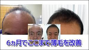 熊本スーパースカルプ発毛センターの特徴