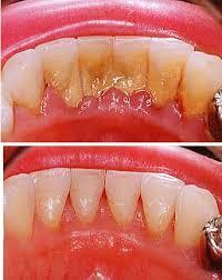 Картинки по запросу зубной камень