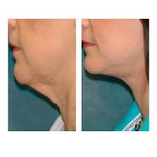 Neck lines wrinkles