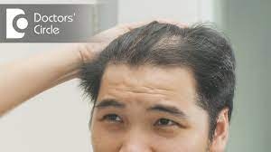 This works especially well in patients with inflammatory scalp disease, dr. How To Treat Hair Thinning In Front Part Of The Scalp Dr Nischal K Youtube