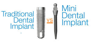 Image result for mini implants