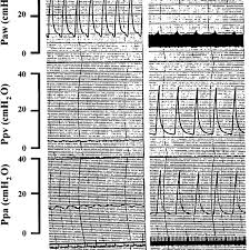 Polygraph Chart Definition Portions Of Polygraph Chart Records From Isolated Rat Lung