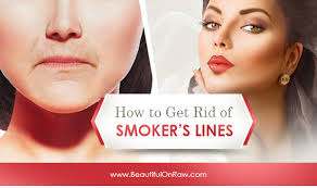how to get rid of lip lines beautiful