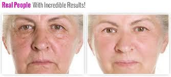 cream that works like botox vitier advanced anti aging cream rejuvenates your skin without botox