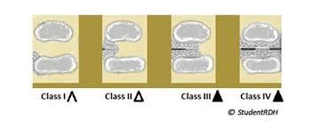 Summary Of Furcation Defects For Dental Hygiene Exams