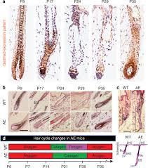 roles of gasdermina3 in caen telogen