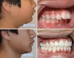 Overjet Overbite In Adult Teeth Causes Orthodontic