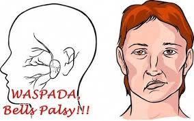 Hasil gambar untuk penyakit bell's palsy