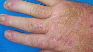 Plaque psoriasis arthritis