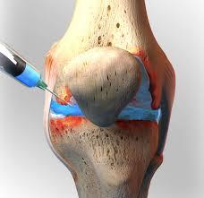steroids for osteoarthritis