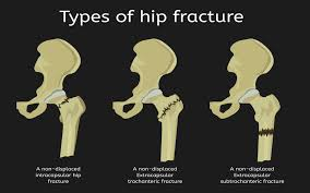 don t delay hip fracture surgery here