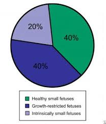 Iugr Vs Sga Growth Chart Fetal Growth Restriction Overview Causes Of Intrauterine