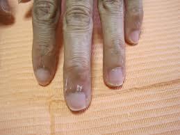 マニキュア 爪 白く なる
