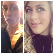 anorexic face before after.  Face 15 Inspiring Before And After Pictures Of People Who Beat Their Eating  Disorders Intended Anorexic Face J