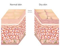 The naked Truth about Dry Skin and 4 Simple Cures | HUM Nutrition Blog
