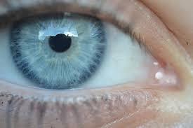 10 tips tegen droge ogen en oog