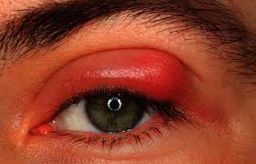 hordeolum image of swollen eyelid due to a stye infection in upper eyelid