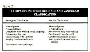vasculogenic claudication