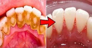 this simple home treatment can remove dental plaque and tartar from your teeth in just 2 minutes