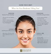 Acne Face Map What Are Your Breakouts Telling You