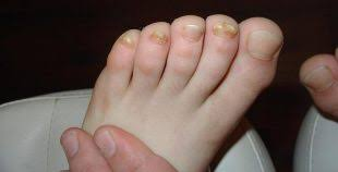 Plíseň Nehtů Na Nohou Foto Tinedol