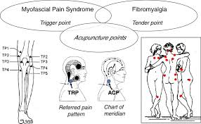 Close Relationships Among Trigger Points Acupuncture Points