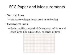 Overview Of Ecg Part 1