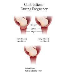 Pregnancy Labor Contractions Chart 3 Types Of Contractions During Pregnancy Its Significance