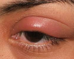 what are swollen eyelids