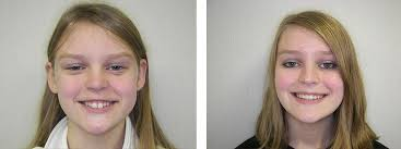 Before And After Birmingham And Milford Orthodontic