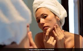7 foods that can cause acne ndtv food