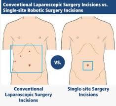 cholecystectomy gallbladder removal