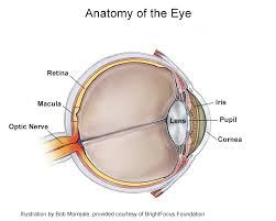 wet myopic macular degeneration