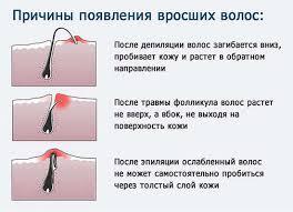 Крем для депиляции верхней губы