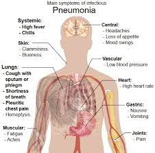 cal bed for pneumonia prevention