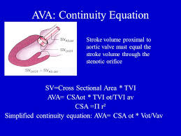 23 ava continuity equation aortic stenosis echo clinical conference march 10 2010 anne b