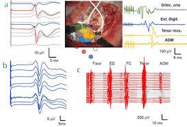 eloquent cortex diagram eloquent database wiring diagram schematics