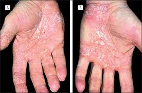 Soak and Smear: A Standard Technique Revisited | Dermatology | JAMA ...