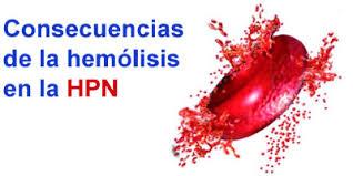 Resultado de imagen de hemoglobinuria paroxística nocturna