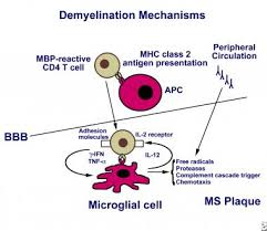 Multiple Sclerosis Practice Essentials Background