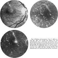Punctate Inner Choroidopathy