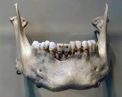 middle island dental works 63 best ancient dentistry images on pinterest dentistry teeth and