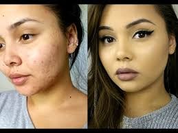 how to cover acne acne scarring flawless foundation routine