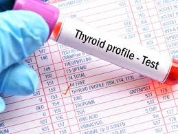 Thyroid Test Range Chart India Thyroid Function Test Know What T3 T4 And Tsh Mean Times