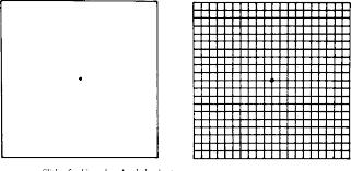 Amsler Chart Working Distance Figure 4 From Binocular Amslers Charts Semantic Scholar