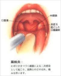 急性 扁桃 腺 炎 と は