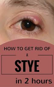 anyone confronted with a stye at least once in his life it s a painful and not a very pleasant sensation to have a huge pimple on your eyelid