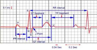 How To Read Cardiogram Chart Electrocardiography Overview Ecg Indications And