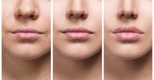 lip injections what you need to know