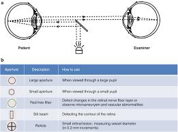 Fundus Chart Fundus Examination Springerlink